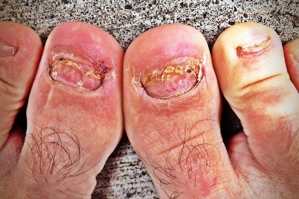Los pies más feos que jamás has visto